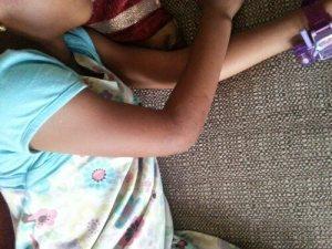 GARLIC ARM HEALED